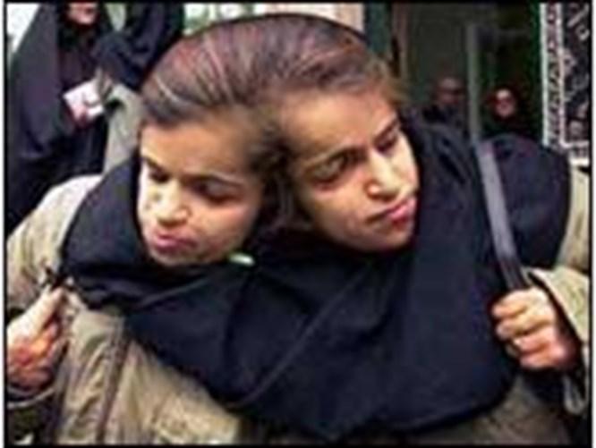İranlı ikizler mezarda ayrılacak